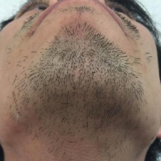 脱毛をしている人のイメージ前