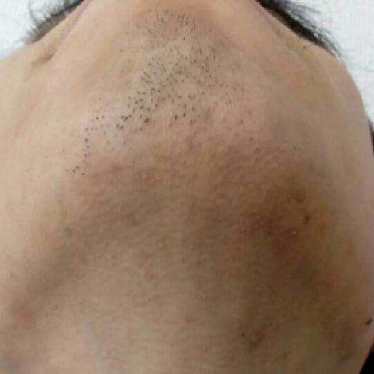 脱毛をしている人のイメージ後